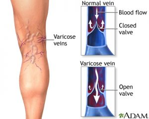 Varicose-vein-image-300x240-1